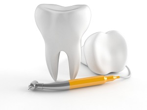 https://www.dubbodentistry.com.au/wp-content/uploads/2018/02/Root-Canal-Therapy.jpg