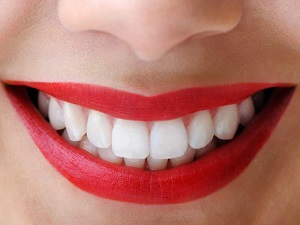 https://www.dubbodentistry.com.au/wp-content/uploads/2018/02/Teeth-Whitening.jpg